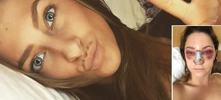 Ετσι γίνεται το πρόσωπο μετά από πλαστική στη μύτη - Η 24χρονη θεά που τόλμησε να το δείξει!