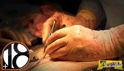 Πώς ακριβώς γίνεται η επέμβαση της καισαρικής: Ένα 4λεπτο βίντεο για γερό στομάχι! (Προσοχή σκληρές εικόνες)