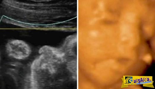 Τι κάνει ένα μωρό μέσα στην μήτρα; Φτερνίζεται, κλαίει και τρώει!