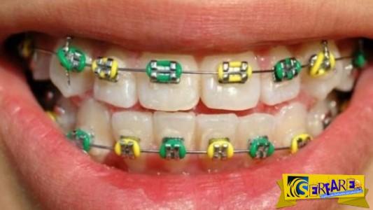 Δείτε πώς τα σιδεράκια ισιώνουν τα δόντια!