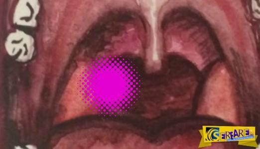 Η αναπνοή της μύριζε τόσο πολύ,που αποφάσισε να πάει στο γιατρό. Δείτε τι κρυβόταν πίσω από τις αμυγδαλές της …