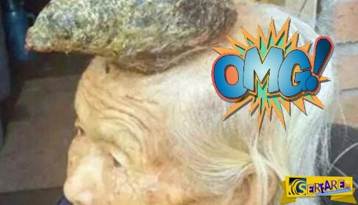 Η γυναίκα-μονόκερος αφαιρεί το «κέρατο» μετά από 8 χρόνια!