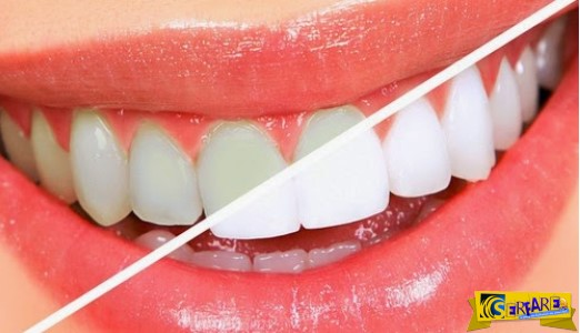 Πλάκα στα δόντια: Πώς θα απαλλαγείτε χωρίς επίσκεψη στον οδοντίατρο