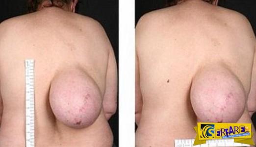 Σοκάρουν οι φωτογραφίες με τη γυναίκα με το στήθος στην πλάτη!