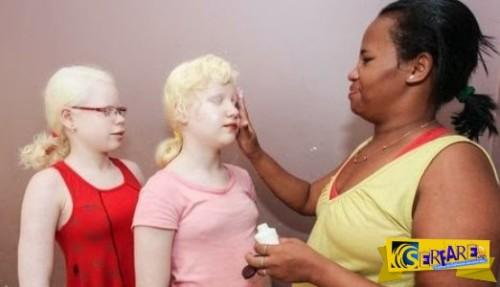 Το μυστήριο της μαύρης Βραζιλιάνας που γεννάει κατάλευκα παιδιά!
