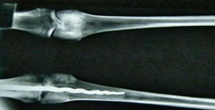chirourgiko-metalliko-emfitevma-moumiopiimeno-soma-prin-apo-2-600-chronia