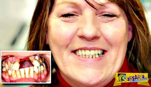 Τραγικό! 10 χρόνια επισκεύαζε μόνη της τα δόντια με... κόλλα στιγμής - Δείτε τι έπαθε