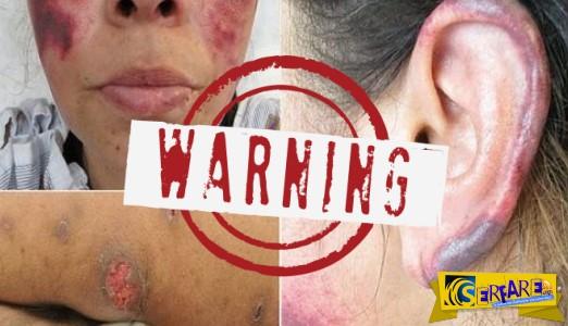 Τρομακτικό περιστατικό: Η κοκαΐνη έκανε το δέρμα της να... σαπίσει!