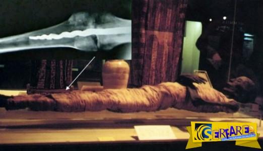 Χειρουργικό μεταλλικό εμφύτευμα σε μουμιοποιημένο σώμα πριν από 2.600 χρόνια!