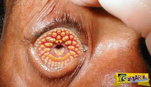 10 ασθένειες που μπορούν να σε σκοτώσουν σε μια μέρα!