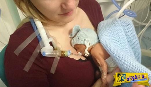 Το πρόωρο μωρό που διέψευσε όλα τα προγνωστικά και έκλεισε ένα χρόνο ζωής