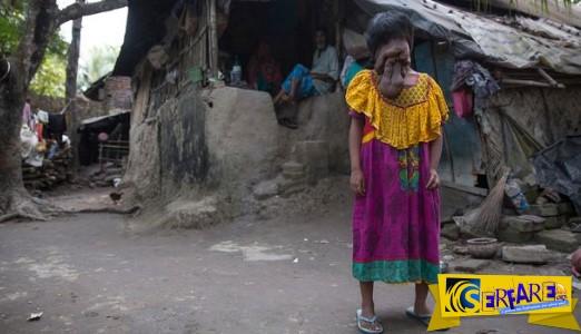 Ινδία: Η κοπέλα που γεννήθηκε χωρίς πρόσωπο!