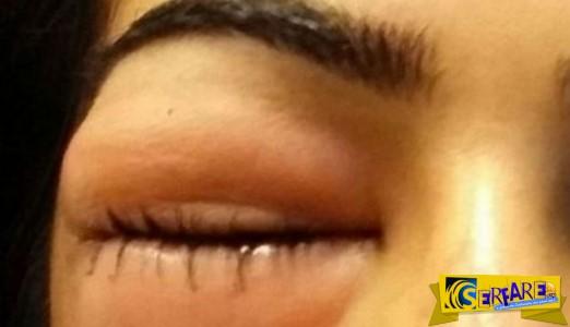 Πρήστηκαν τα μάτια της όταν φύσηξε δυνατά τη μύτη!