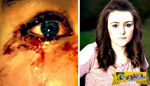 Το νεαρό κορίτσι που βγάζει δάκρυα από… αίμα!