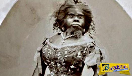 Η ιστορία της γυναίκας-πιθήκου που θάφτηκε 150 χρόνια μετά το θάνατό της!
