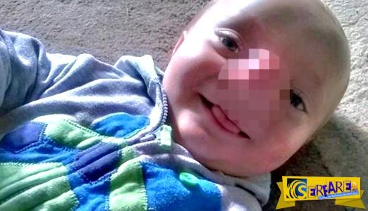 Γεννήθηκε ο αληθινός Πινόκιο: Δείτε το παιδί με την απίστευτη μύτη!