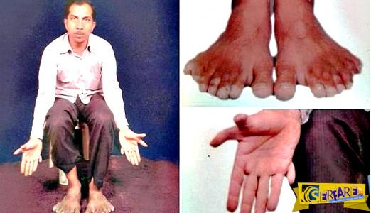 Ο άνθρωπος με τα 28 δάχτυλα που θεωρεί τον εαυτό του ... ευλογημένο!