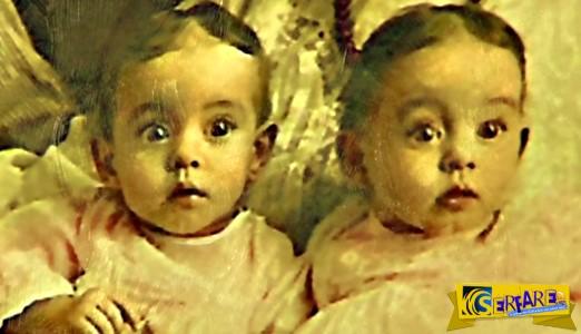 Αυτά τα δίδυμα είναι 1 στα 700 εκατομμύρια! Η μοναδικότητά τους ανακαλύφθηκε 100 χρόνια μετά τη γέννησή τους.