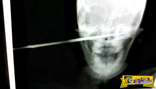 Κένυα: Γενική κατακραυγή για το μαχαίρωμα στο πρόσωπο μιας γυναίκας από τον σύζυγό της!