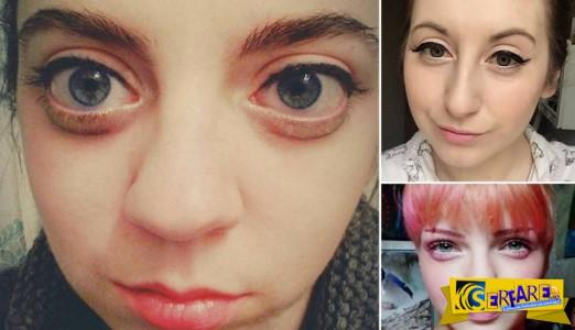 Η νέα μόδα στις γυναίκες για μεγάλα μάτια - Το ειδικό μακιγιάζ και οι ενέσεις ...