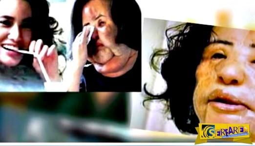 Δέκα περιπτώσεις πλαστικής χειρουργικής που δεν είχαν το επιθυμητό αποτέλεσμα!