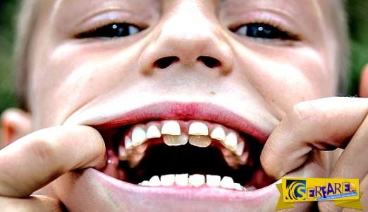 Οκτάχρονος έχει δύο σειρές δόντια!
