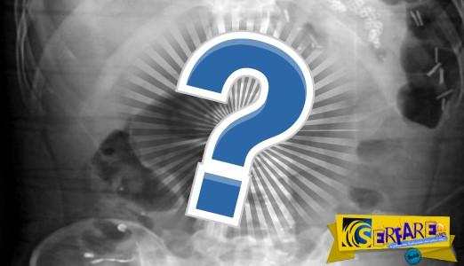 Η ακτινογραφία που πάγωσε γιατρούς και αστυνομικούς – Ο νεαρός κρατούμενος έλεγε την αλήθεια…