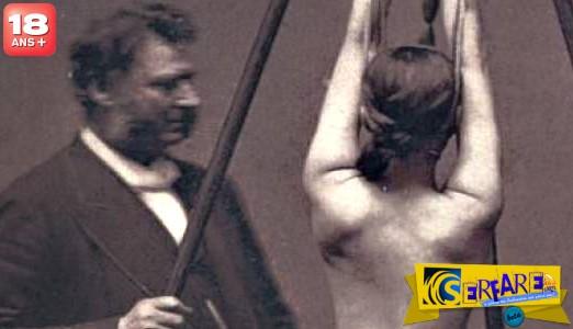Ανατριχιαστικό βίντεο με ιατρικές πρακτικές πριν από έναν αιώνα!