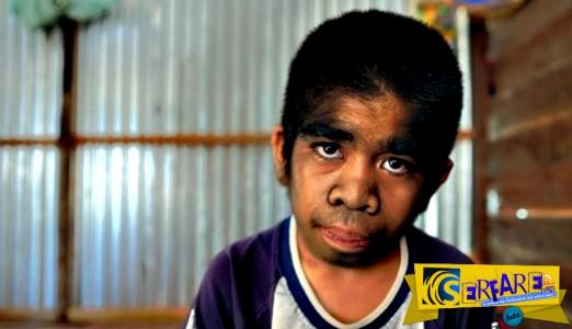 Δείτε τον 13χρονο λυκάνθρωπο που λατρεύεται σαν Θεός