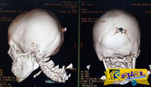 12χρονη μεταφέρθηκε στο νοσοκομείο με στιλέτο καρφωμένο στο κεφάλι και ... επέζησε!