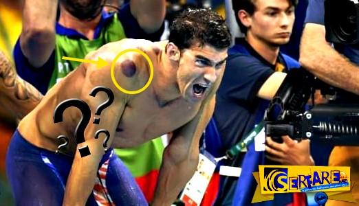 Τι είναι τα μυστηριώδη κόκκινα σημάδια στα κορμιά των Αμερικανών αθλητών;