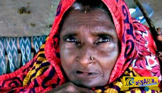 Η γυναίκα που συρρικνώθηκε - Έχει χάσει ήδη 90 πόντους!