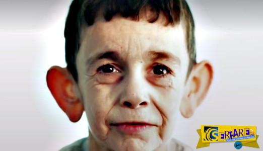 """Προγηρία: Ο 7χρονος που """"ζει στο σώμα"""" 70χρονου – Συγκλονίζουν οι εικόνες!"""