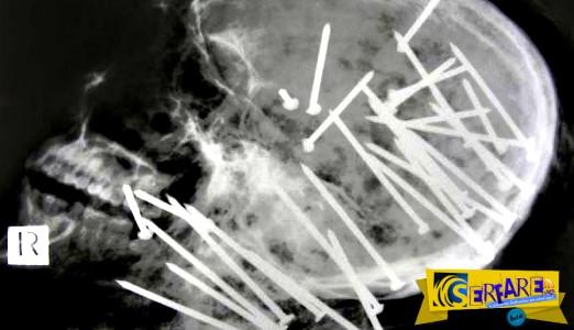 Οι πιο περίεργες και απίστευτες ακτινογραφίες που έχετε δει!