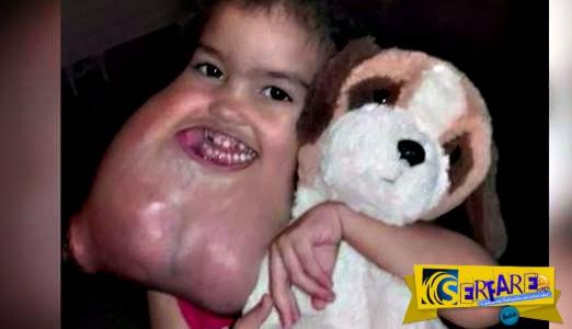 Αφαίρεσαν τεράστιο όγκο από το πρόσωπο παιδιού – Δείτε το αποτέλεσμα!