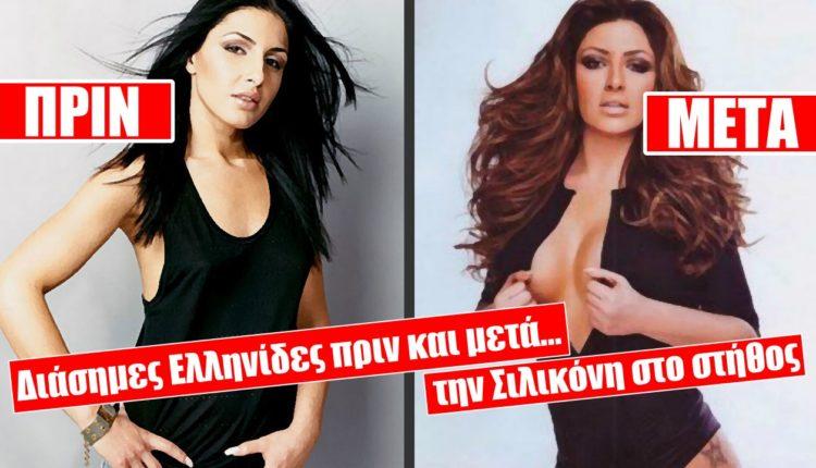 Διάσημες Ελληνίδες ΠΡΙΝ και ΜΕΤΑ την σιλικόνη στο στήθος!