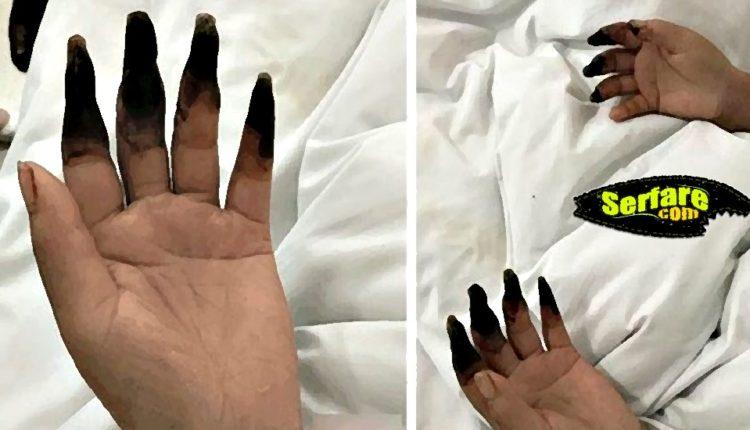 Τα δάχτυλα της Μαύρισαν μετά από δουλειές στο σπίτι! Διαβάστε την περίεργη ιστορία