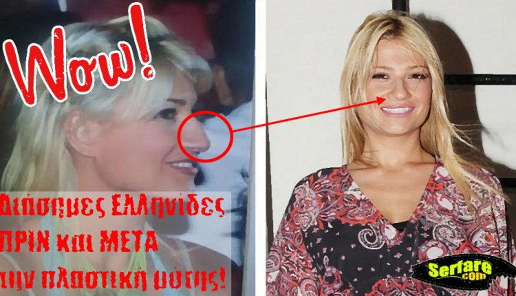 Διάσημες Ελληνίδες ΠΡΙΝ και ΜΕΤΑ την πλαστική μύτης!