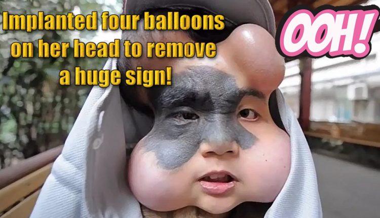 Εμφύτευσε τέσσερα μπαλόνια στο κεφάλι της για να αφαιρέσει ένα τεράστιο σημάδι!