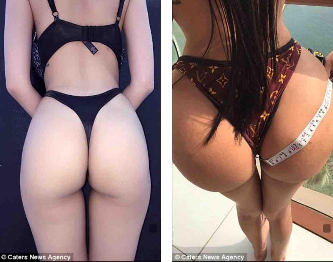 Jennifer Pamplona: Το μοντέλο που ξόδεψε 500.000 ευρώ για να βάλει λίπος στα οπίσθια!